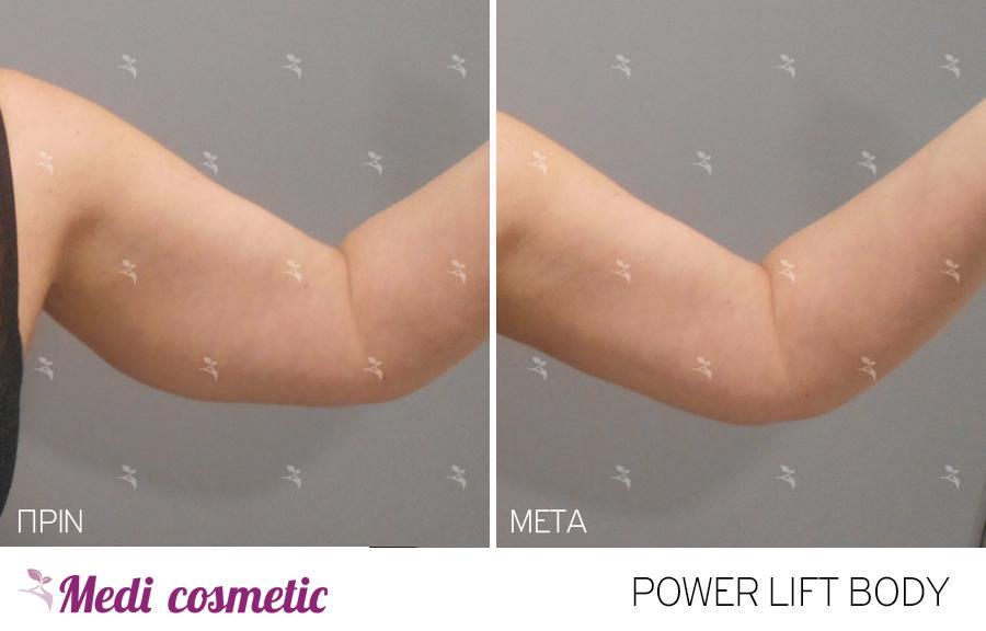 POWER LIFT BODY